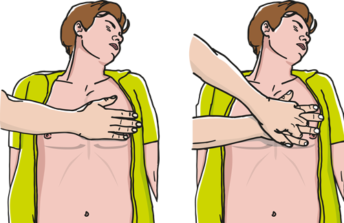 Sådan giver du brystkompressioner